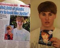 Bieber'a benzemek için sürekli estetik yaptırıyor