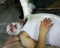 AA muhabiri Suriyede ölümden döndü