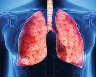 İşte akciğerlerinizi temizleyecek besinler