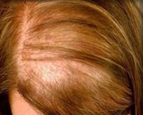 Saç dökülmesi yaşıyorsanız bunları yapın