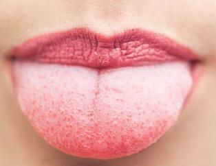 Diline bak hastalığını öğren!